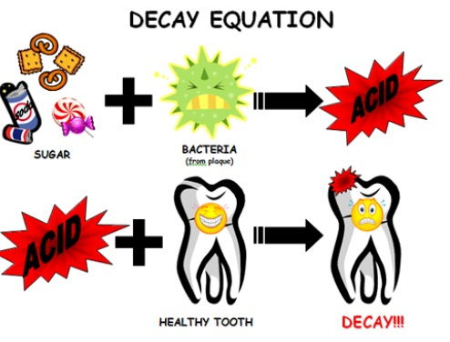tooth decay eqaution